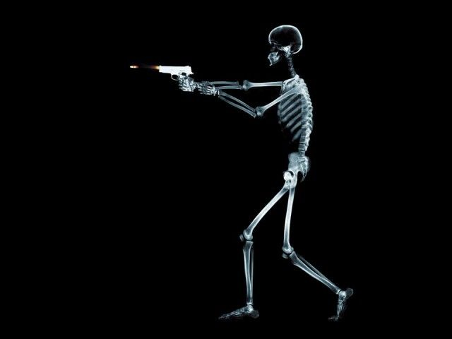 X-Ray xr27.jpg