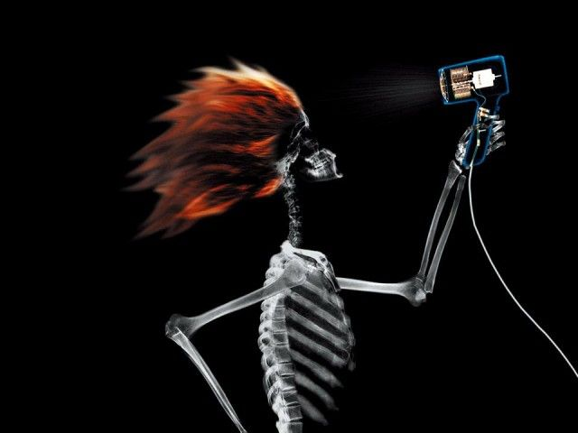 X-Ray xr3.jpg